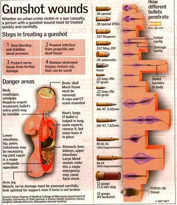 Gunshot wounds diagram
