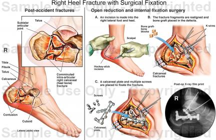 Right Heel Fracture With Surgical Fixation