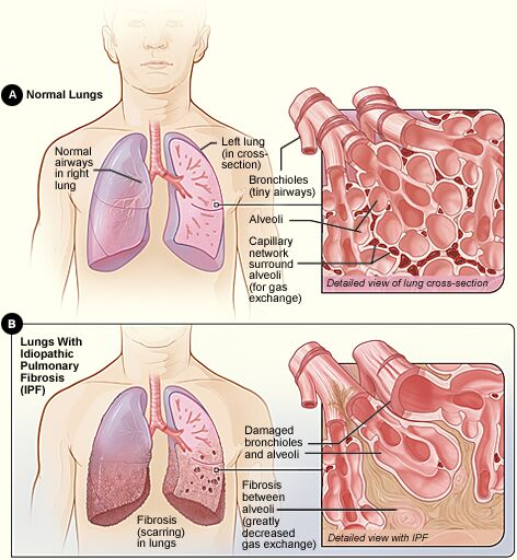 Idiopathic Pulmonary Fibrosis Anatomy