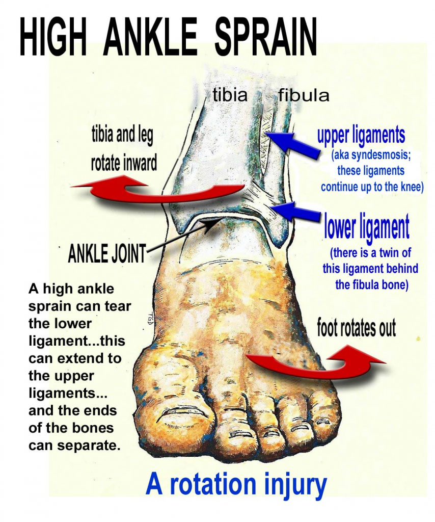 High Ankle Sprain Anatomy