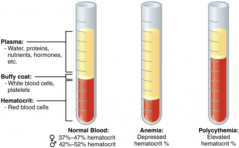 Blood Components In Normal Blood, Anemia, And Polycythemia Diagram