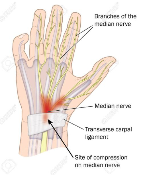 Branches Of The Median Nerve And Site Of Compression