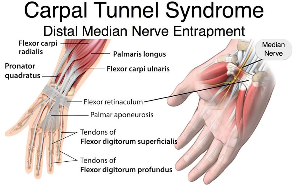 Carpal Tunnel Syndrome Distal Median Nerve Entrapment