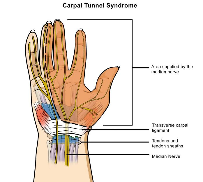Carpal Tunnel Syndrome, Median Nerve Supplied Area