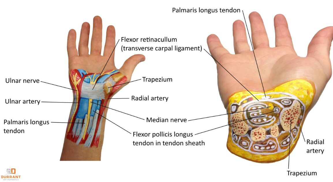 Carpal Tunnel Syndrome With Transverse Cross-section