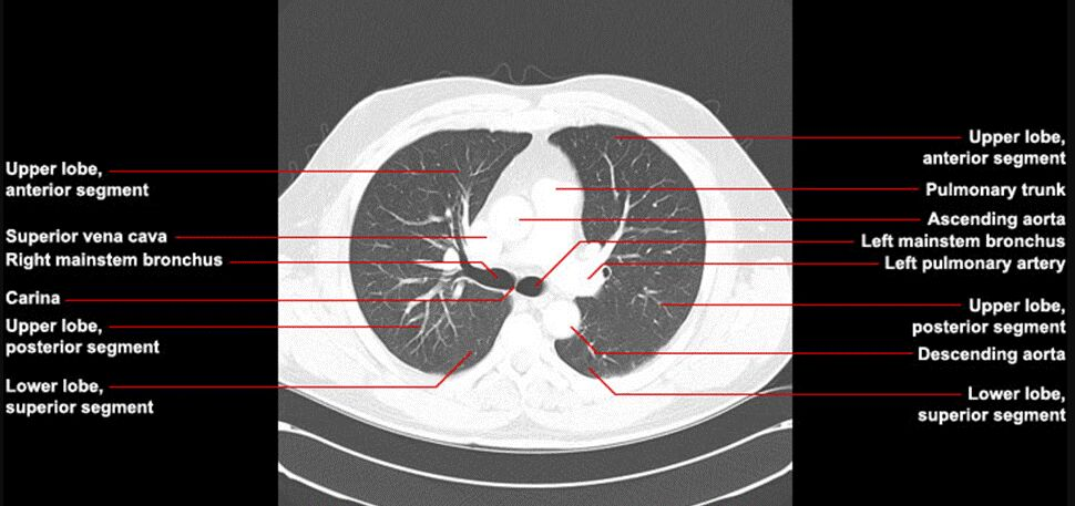 Lung Chest Ct Scan Sectional View Introduction