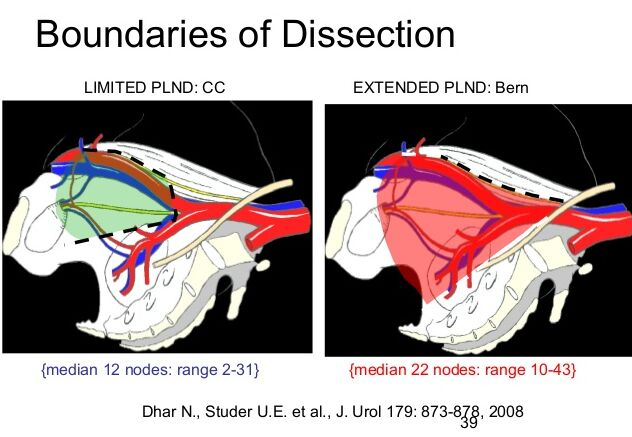 Lymph Node Boundaries Of Dissection Diagram