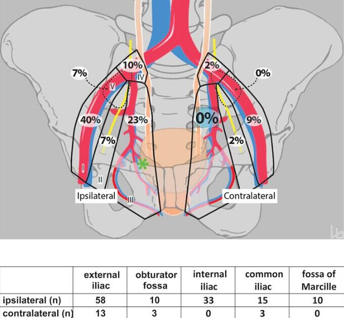 Lymph Node Metastases Area In Pelvic Area