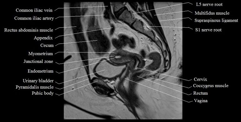Mri Sagittal Cross-sectional Anatomy Of The Female Pelvis