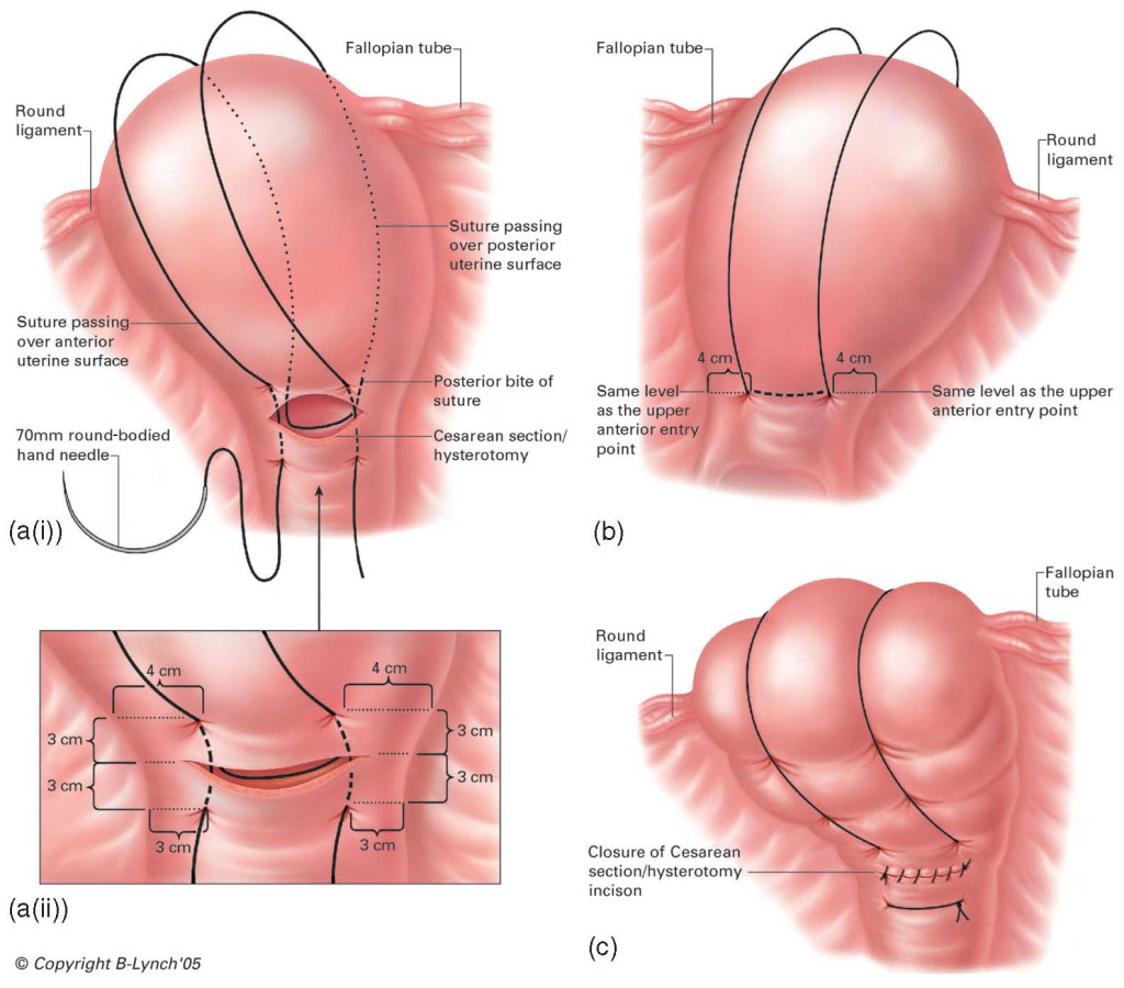 Abdominal Hysterectomy Anatomical Diagram