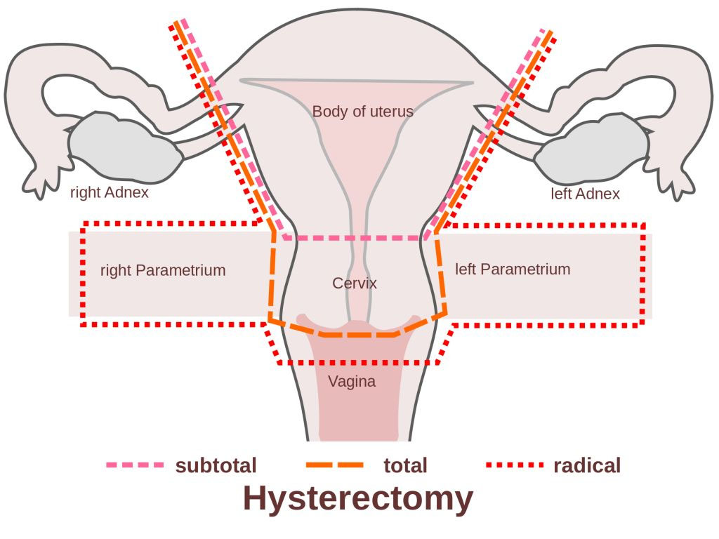 Hysterectomy Anatomical View