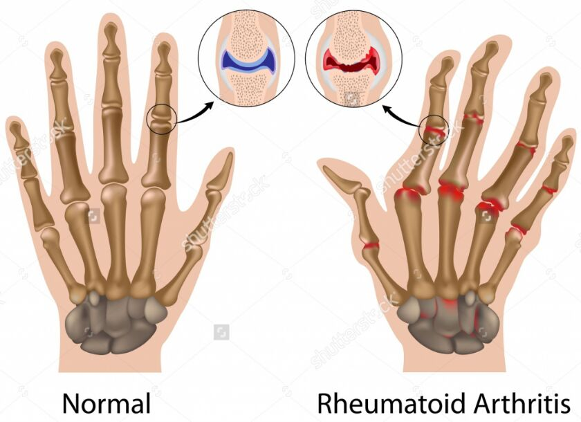 Normal Joint And Rheumatoid Arthritis Joint Difference