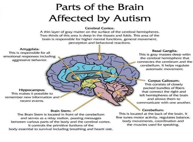 Parts Of The Brain Affected By Autism Diagram