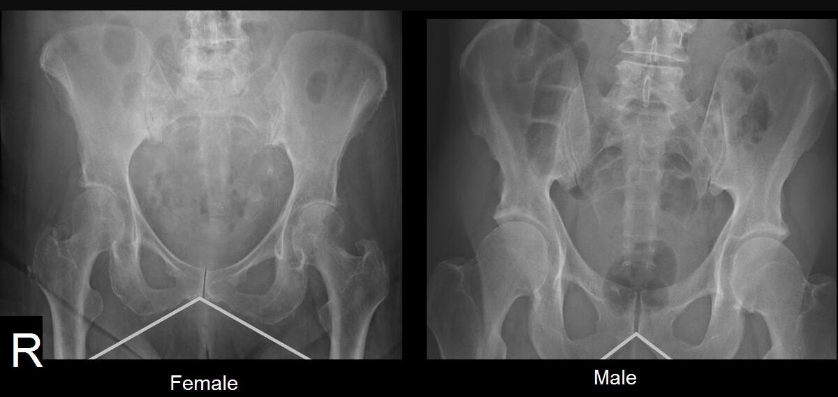 Difference Between Male Pelvis X-ray And Female Pelvis X-ray
