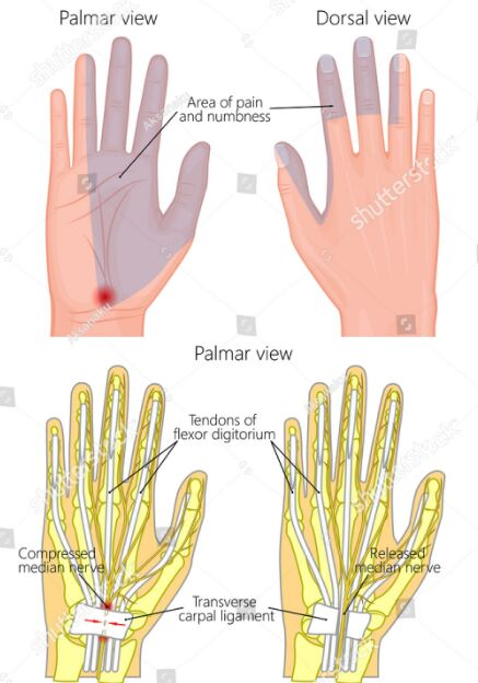 Carpal Tunnel Syndrome Pain And Numbness Area
