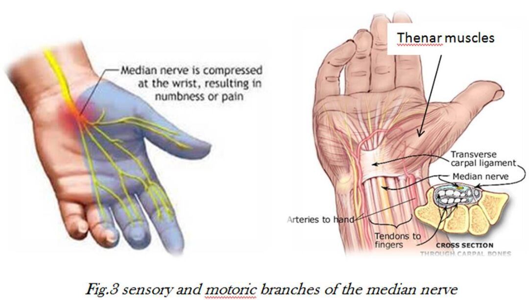Sensory And Motoric Branches Of The Median Nerve