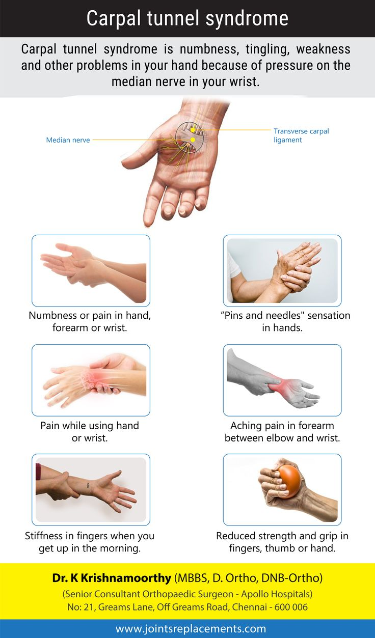 Carpal Tunnel Syndrome Introduction By Dr K Krishnamoorthy
