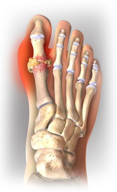 Gout Disease On Foot