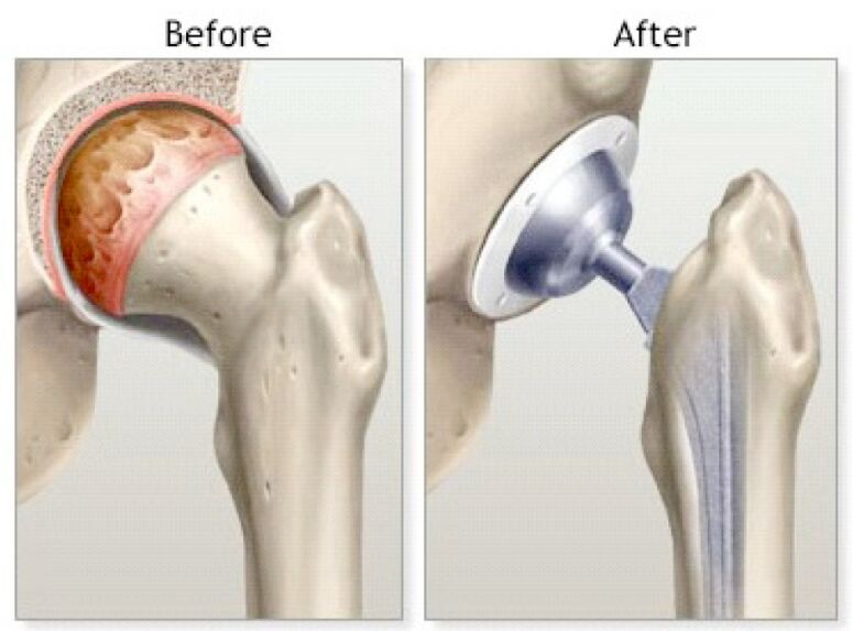 Femur Prosthesis Before And After View
