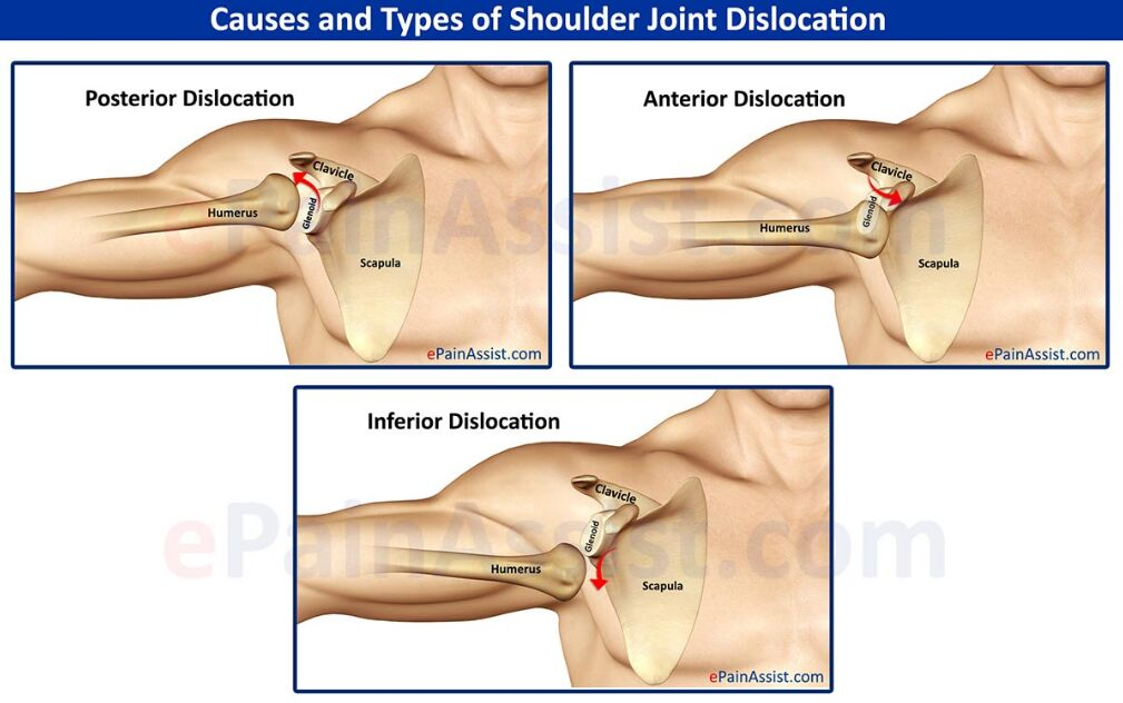 Shoulder Joint Dislocation Causes And Types