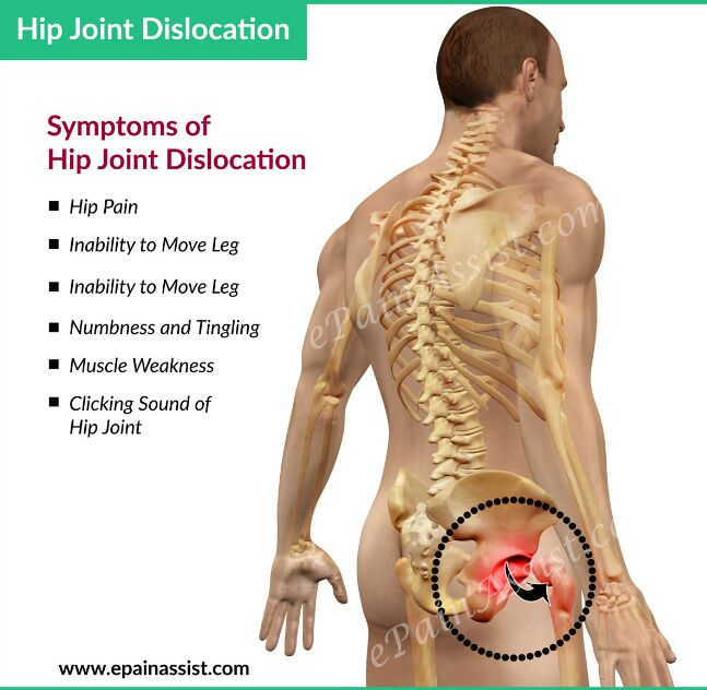 Hip Joint Dislocation Posterior View