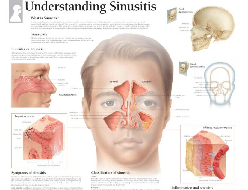 Sinus Anatomy In Head And Sinusitis