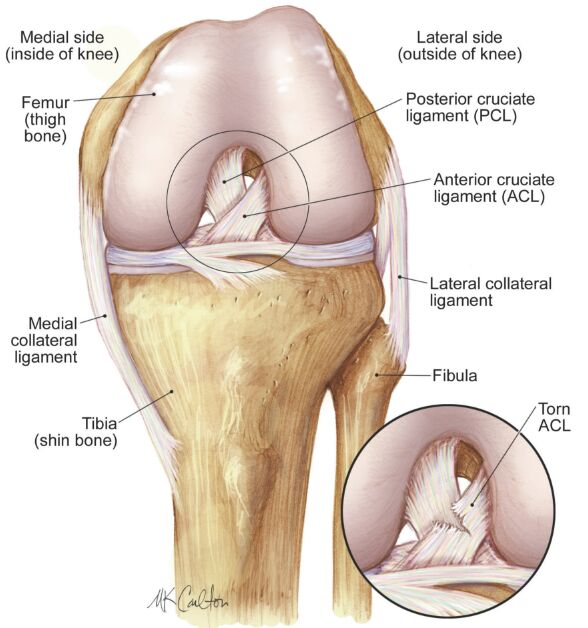 Left Knee Joint In Flexion And Torn Acl