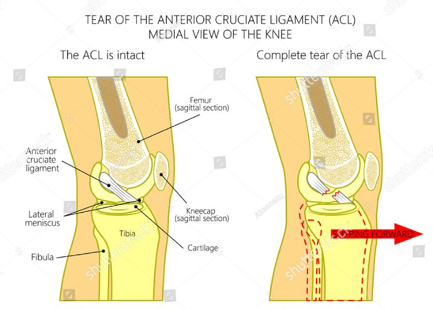 Tear Of The Anterior Cruciate Ligament Medial And Lateral View