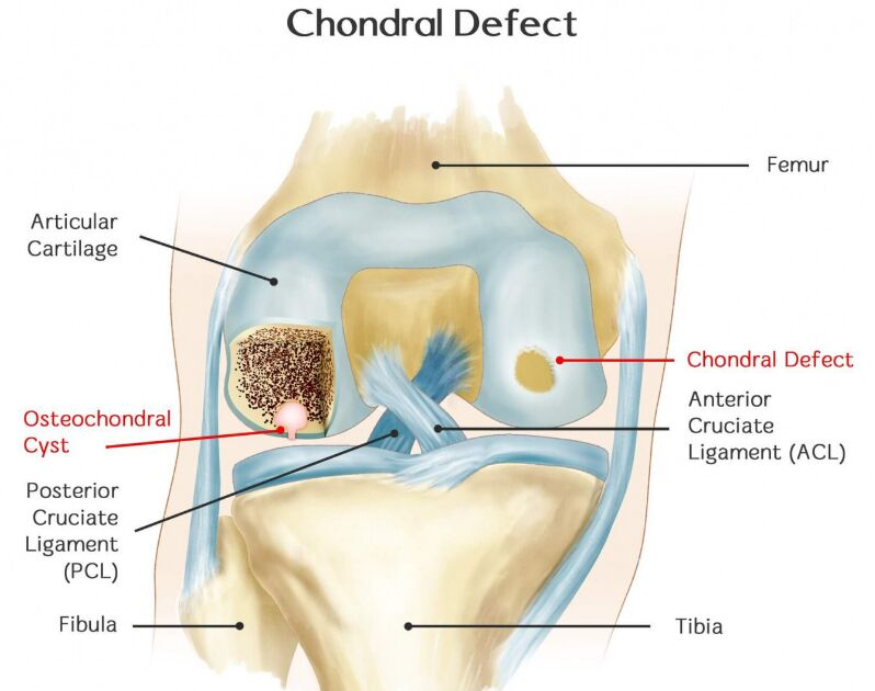 Chondral Defect