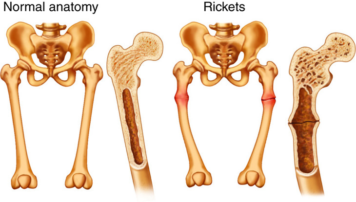 Rickets Anatomy