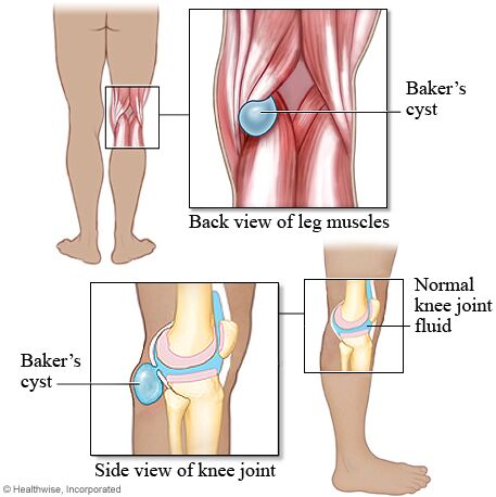 Baker Cyst Anatomy And Normal Knee Joint