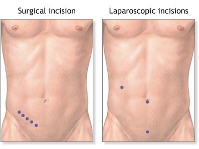 Appendectomy Surgical Incision And Laparoscopic Appendectomy