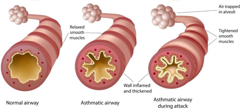 Asthmatic Airway And Asthmatic Attack