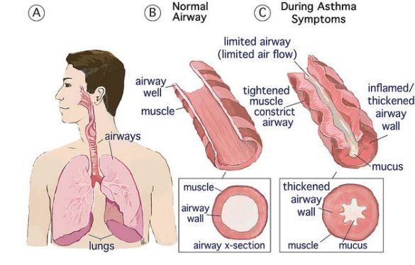 Normal Airway And Asthma Airway