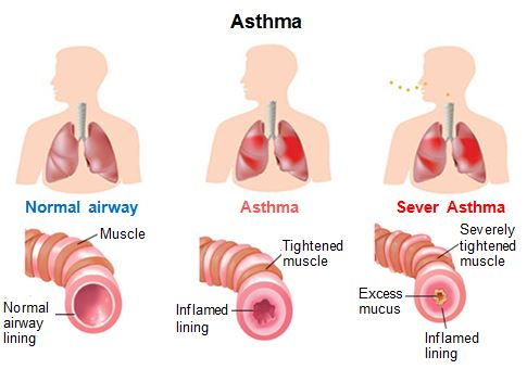 Normal Asthma And Severe Asthma