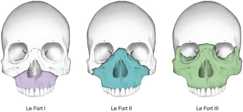 Three Type Of Le Fort Fracture Of Maxilla Bone