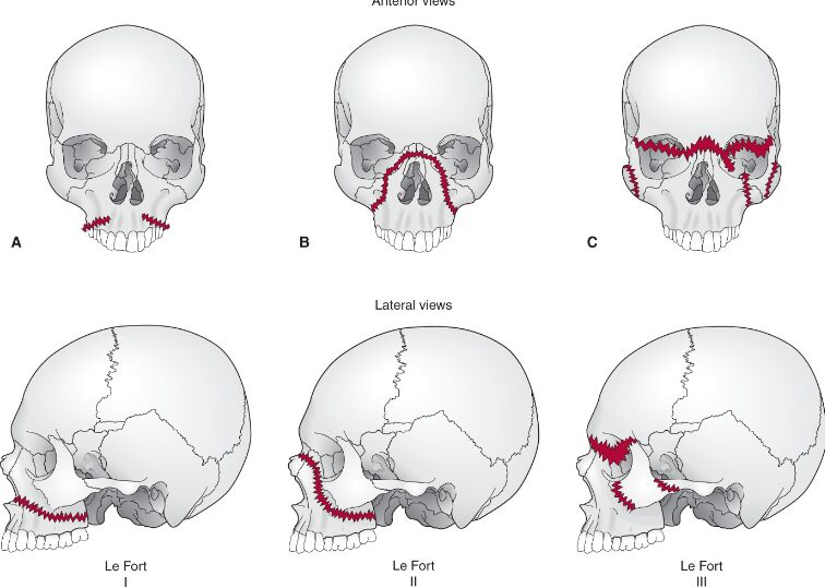 Maxilla Fracture And Classification