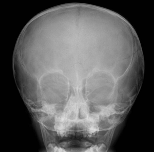 Parietal Skull Fracture In X-ray