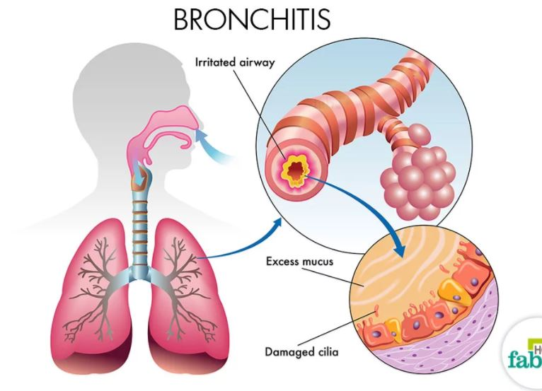 Bronchitis Anatomical Structure