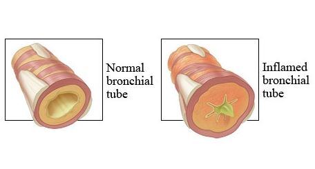Inflamed Bronchial Tube