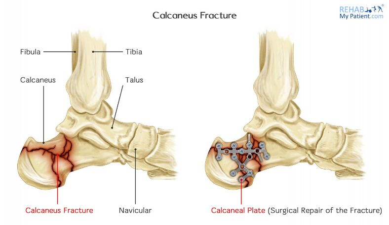 Calcaneus Fracture And Calcaneus Plate