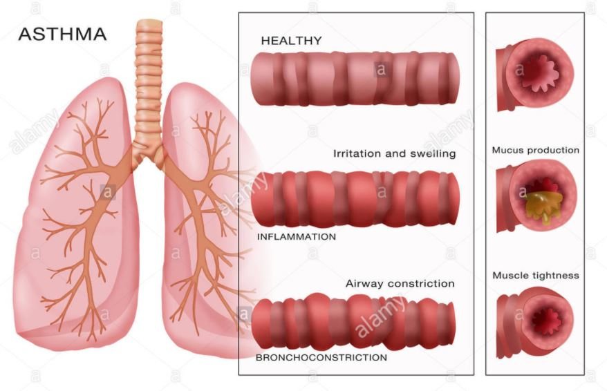Asthmatic Airway Structure
