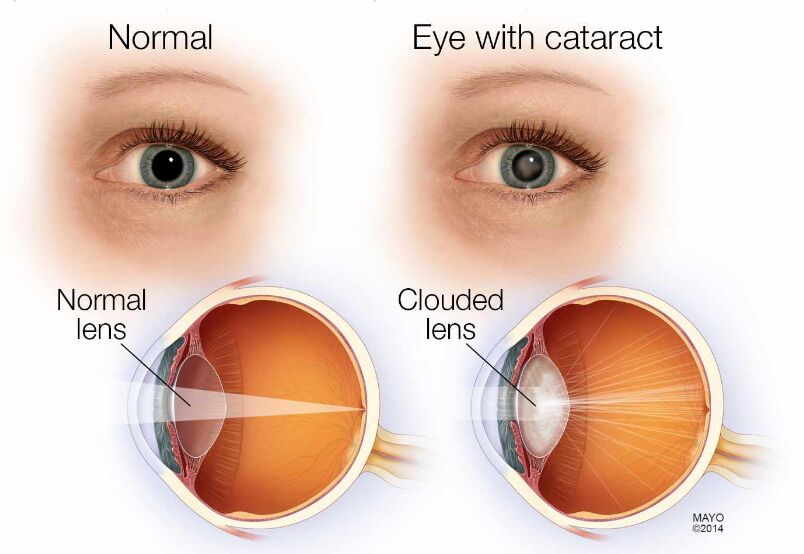 Cataract Eye And Normal Eye