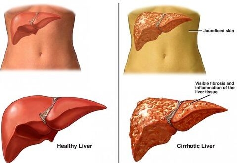 Normal Healthy Liver And Cirrhosis Cirrhotic Liver