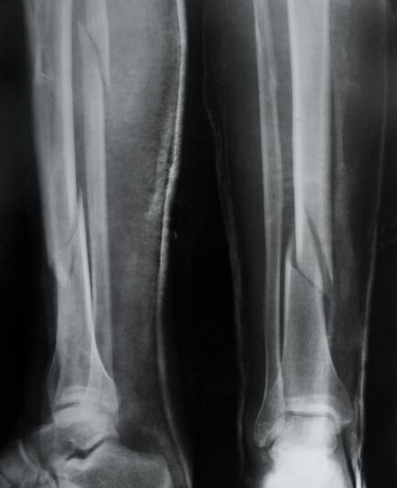 Spiral Fracture In Tibia And Fibula X-ray