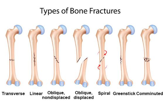 Type Of Bone Fracture