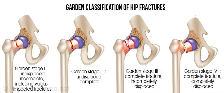 Garden Classification Of Hip Fractures