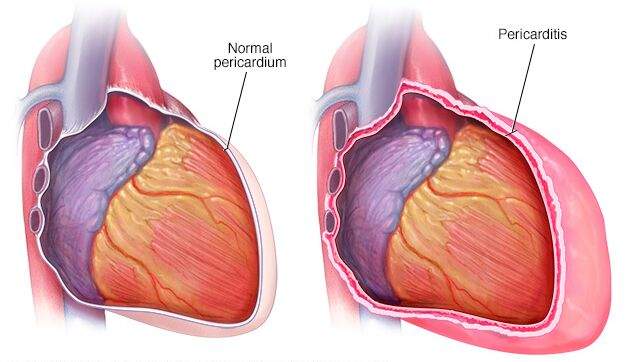 Normal Pericardium And Pericarditis
