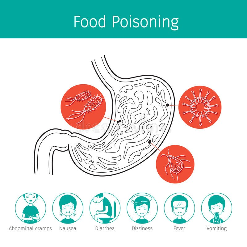 Food Poisoning Anatomy And Symptoms Diagram