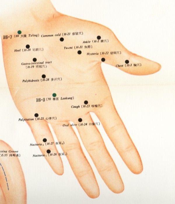 Hand Acupuncture Diagram